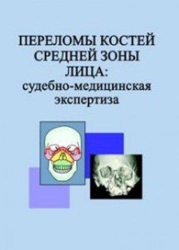 Судебно медицинская экспертиза переломов костей